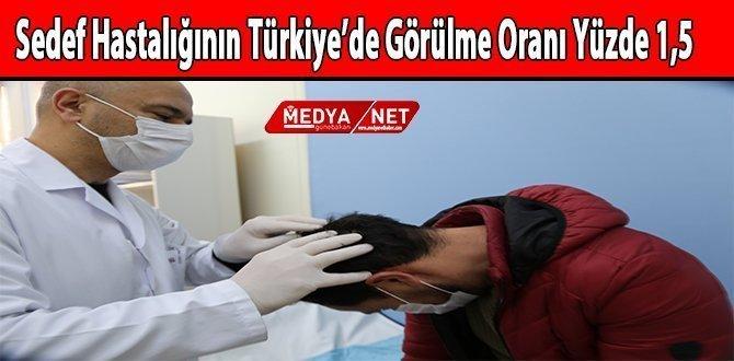 Sedef Hastalığının Türkiye'de Görülme Oranı Yüzde 1,5